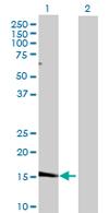 Western blot - SHISA5 antibody (ab67073)