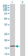Western blot - ZNF593 antibody (ab67074)