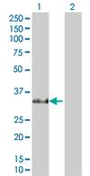 Western blot - RBPMS antibody (ab67078)