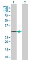 Western blot - HLA-DOA antibody (ab67079)