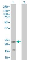 Western blot - IGLL1 antibody (ab67081)