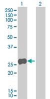 Western blot - Anti-MRPL21 antibody (ab67082)
