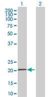 Western blot - COMMD3 antibody (ab67084)