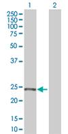 Western blot - RAB28 antibody (ab67085)