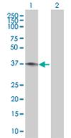 Western blot - MAPK15 antibody (ab67086)