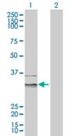 Western blot - LETMD1 antibody (ab67093)