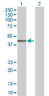Western blot - SDCCAG8 antibody (ab67098)