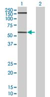 Western blot - GPA33 antibody (ab67102)