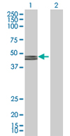 Western blot - GCDH antibody (ab67103)