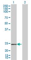 Western blot - NDUFS8 antibody (ab67106)