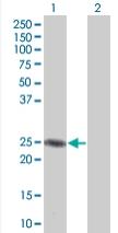 Western blot - MGC2803 antibody (ab67117)