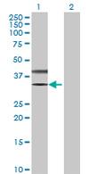 Western blot - SLC25A3 antibody (ab67121)