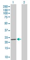 Western blot - GAJ antibody (ab67124)