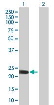 Western blot - ZDHHC7 antibody (ab67127)