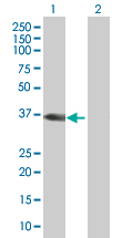 Western blot - CSGALNACT1 antibody (ab67128)