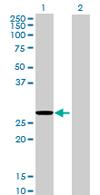 Western blot - MRPL22 antibody (ab67132)