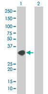 Western blot - NT5C3 antibody (ab67133)