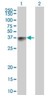 Western blot - SLAMF7 antibody (ab67135)