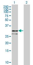 Western blot - MPZL antibody (ab67152)