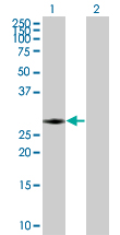 Western blot - RAB40A antibody (ab67153)