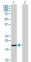 Western blot - IFNA17 antibody (ab67154)