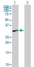 Western blot - PIG3 antibody (ab67155)