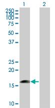 Western blot - MRPS27 antibody (ab67157)