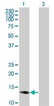 Western blot - SSNA1 antibody (ab67158)
