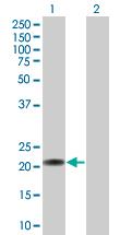 Western blot - C7orf16 antibody (ab67159)