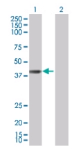 Western blot - BBS5 antibody (ab67162)