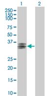 Western blot - ART5 antibody (ab67174)