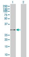 Western blot - MRPL10 antibody (ab67178)