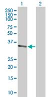 Western blot - RBKS antibody (ab67180)