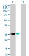 Western blot - MRPL40 antibody (ab67184)
