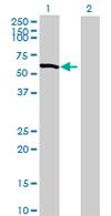Western blot - Rho guanine exchange factor 16 antibody (ab67185)