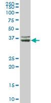 Western blot - CFHL1 antibody (ab67190)