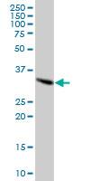 Western blot - SFXN2 antibody (ab67191)