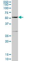 Western blot - PPP1R16A antibody (ab67194)