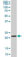 Western blot - RPL29 antibody (ab67196)