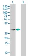 Western blot - PAG608 antibody (ab67198)