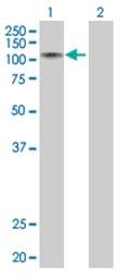 Western blot - RNF10 antibody (ab67200)