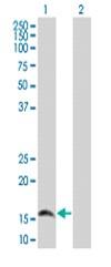 Western blot - PRKRIR antibody (ab67201)