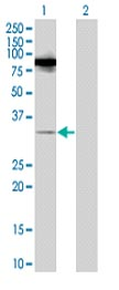 Western blot - RASL11B antibody (ab67205)