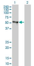 Western blot - C8orf72 antibody (ab67209)