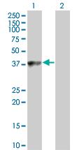 Western blot - C9orf100 antibody (ab67211)