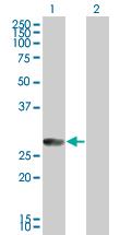 Western blot - Rab20 antibody (ab67213)