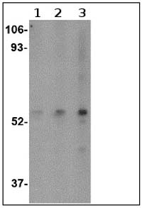 Western blot - SP110 antibody (ab67220)