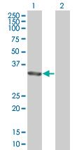 Western blot - ALP antibody (ab67228)