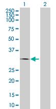 Western blot - CTRB1 antibody (ab67229)