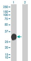 Western blot - PEF1 antibody (ab67230)
